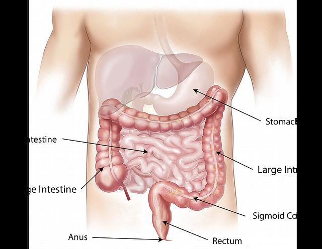 Darmstelsel - prikkelbare darm syndroom
